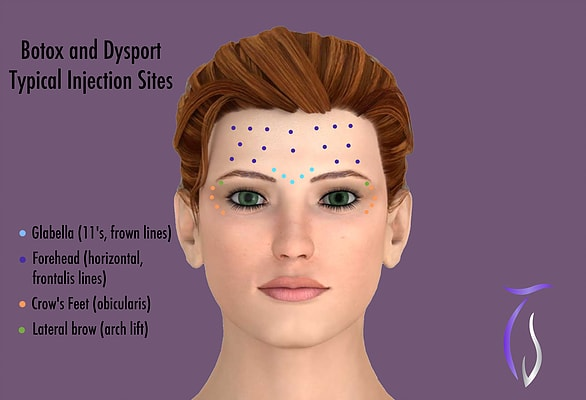 Botox and dysport typical injection sites