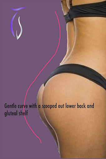 Brazilian butt lift gentle curve with a scooped out lower back and gluteal shelf