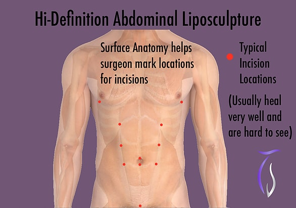 Hi-definition abdominal liposculpture. Typical incision locations