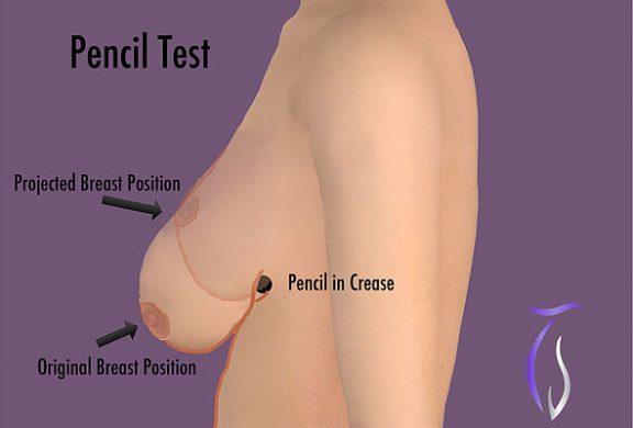 Breast Lift Pencil Test