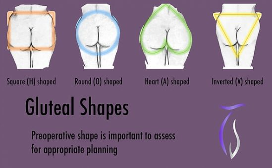 Preoperative shape is important to assess for appropriate panning.