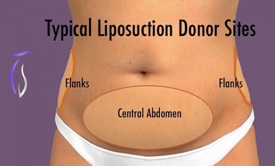 Liposuction donor sites flank, central abdomen