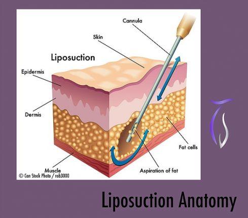 Liposuction anatomy