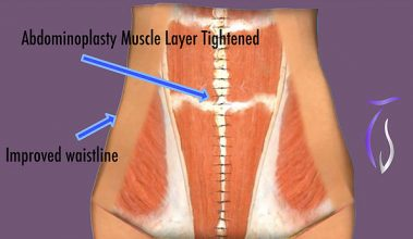 Abdominoplasty muscle layer tightened